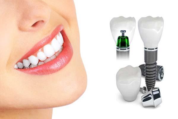 شرکت اشترومن straumann، که بیش از بیست سال است با دارا بودن نمایندگی در کشورمان، در بازار دندانپزشکی ایران حضور داشته است، برند شناخته شدهای در تولید ایمپلنتهای دندانی است