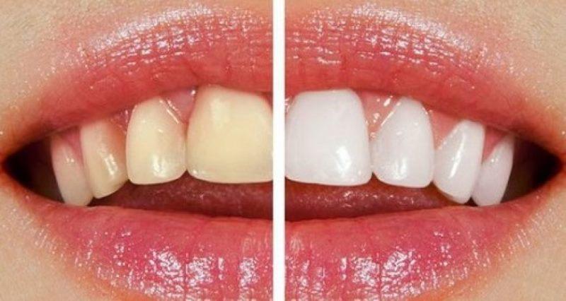 بلیچینگ اگر تحت نظارت دندانپزشک باتجربه انجام بگیرد عارضه خاصی ندارد ،فقط ممکن است دندانها را تا مدتی حساس کند که این مورد نیز معمولا با خمیردندانهای ضد حساسیت قابل درمان است.