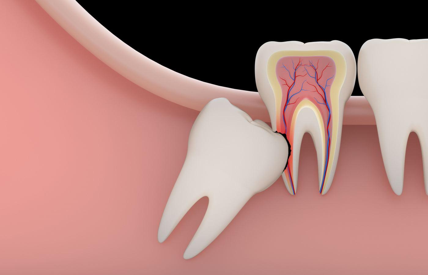 دندان عقل چیست