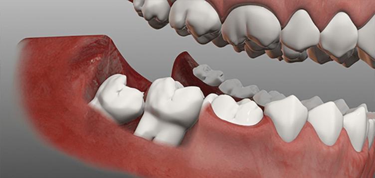 دندان عقل نهفته یا رویش یافته می تواند دندانهای مجاور را تحت فشار قرار دهد. و باعث آسیب به ساختمان آنها شود.