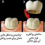 مراحل نصب روکش دندان