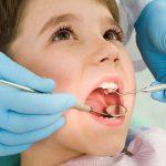 روکش دندان چیست و مراحل انجام آن چگونه است