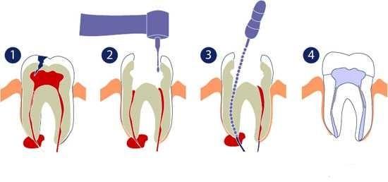 عصب کشی عملی است که طی آن مواد عفونی و عصب موجود در مغز دندان برداشته می شود تا دندان از آسیب میکروب ها در آینده در امان باشد.