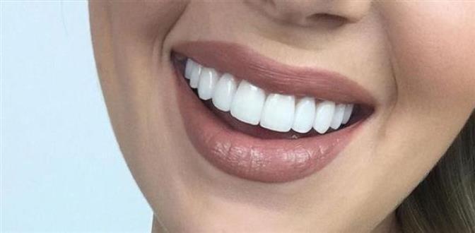 لمینیت یا لیمنت معجزه ای است برای کسانی که از لبخندی زیبا به خاطر بد شکلی و بد رنگی دندان ها محروم هستند.
