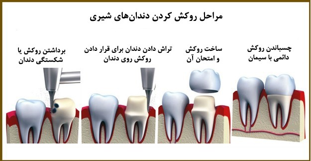 مراحل روکش دندان تصویری