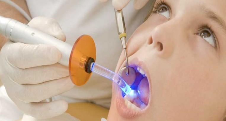 دندانپزشک برای درمان ، بخشهای پوسیده و عفونی دندان را تخلیه میکند و دندان را با مواد پر کننده مخصوصی پر میکند