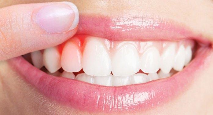 بیماریهای پریودنتال و یا همان بیماری های لثه و بافت های اطراف دندان در صورت رعایت نکردن بهداشت ممکن است برای شما پیش بیاید که می تواند باعث التهاب و خونریزی در لثه شود