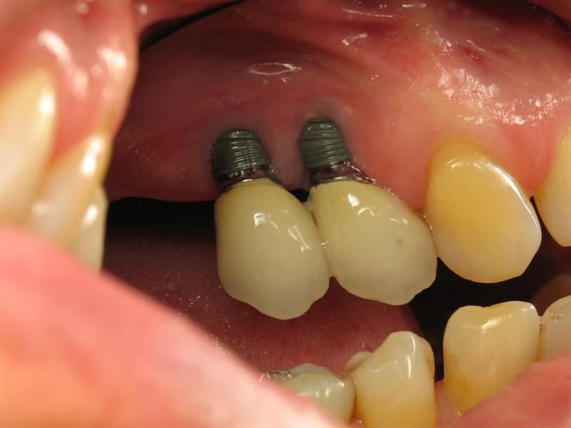 آخرین احتمال عفونت ایمپلنت دندان زمانی است که بعدا اطراف ایمپلنت را با دقت به اندازه کافی تمیز نمیکنید.