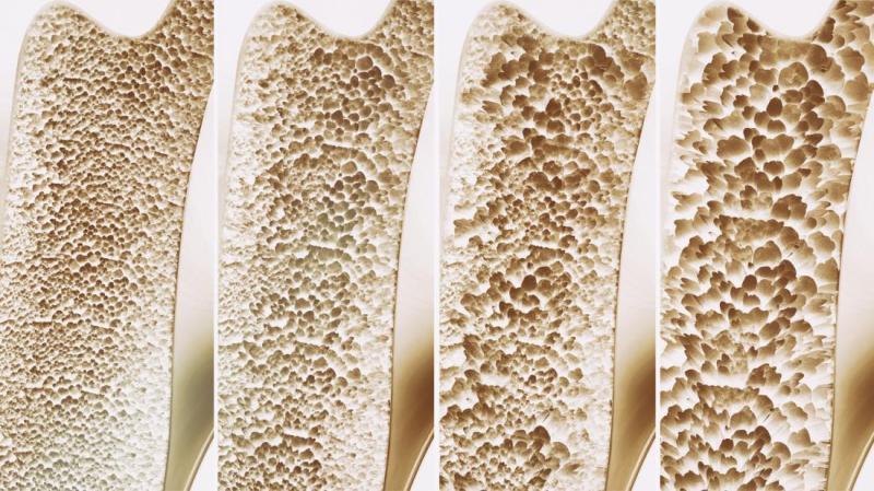 پوکی استخوان می تواند باعث درگیری استخوان فک شود که در این موارد استفاده از ایمپلنت دندان باید با بررسی کامل باشد. با توجه به مدل های تجربی می توان گفت پوکی استخوان روی روند اسئواینتگریشرن تاثیر منفی دارد و این مساله با درمان به جا قابل حل است.
