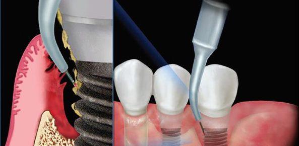 عفونت ایجاد شده بعد از کاشت ایمپلنت میتواند علل بسیار داشته باشه عواملی چون سیگار کشیدن ، رعایت نکردن بهداشت دهان و دندان ، پوکی استخوان ، دیابت و یا بیماری ضعف سیستم ایمنی بدن