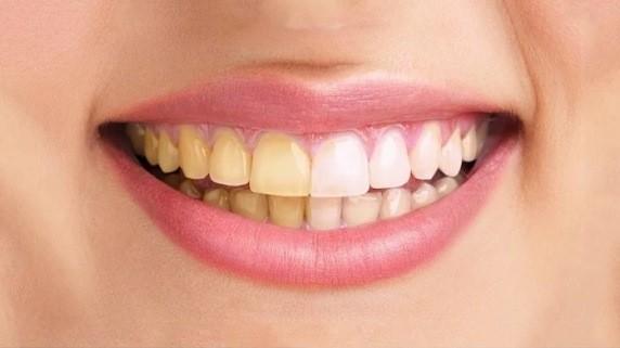 یکی از مهمترین دلایل تغییر رنگ دندان پوسیدگی است.