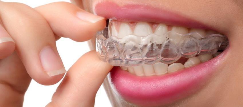 نایت گارد یا محافظها یا گاردهای دهانی که هنگام خوابیدن از آنها استفاده میشود به رفع مشکل خرو پف، وقفه تنفسی (آپنه) در خواب خفیف تا متوسط، دندان قروچه (ساییدن و فشار دادن دندانها روی هم) یا اختلال مفصل فکی ـ گیجگاهی بسیاری از بیماران کمک کرده است.