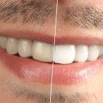 تغییر رنگ دندان علل و عوامل