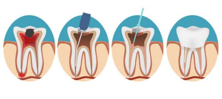 درمان مجدد ریشه در هر موردی متفاوت است و بستگی به شرایط بیمار و مهارت و تجربه دندانپزشک دارد. برخی علایم هشدار دهنده ای وجود دارد که نشان میدهند شکست درمان قریب الوقوع خواهد بود یا فاکتور خطر مهمی برای درمان مجدد وجود دارد.