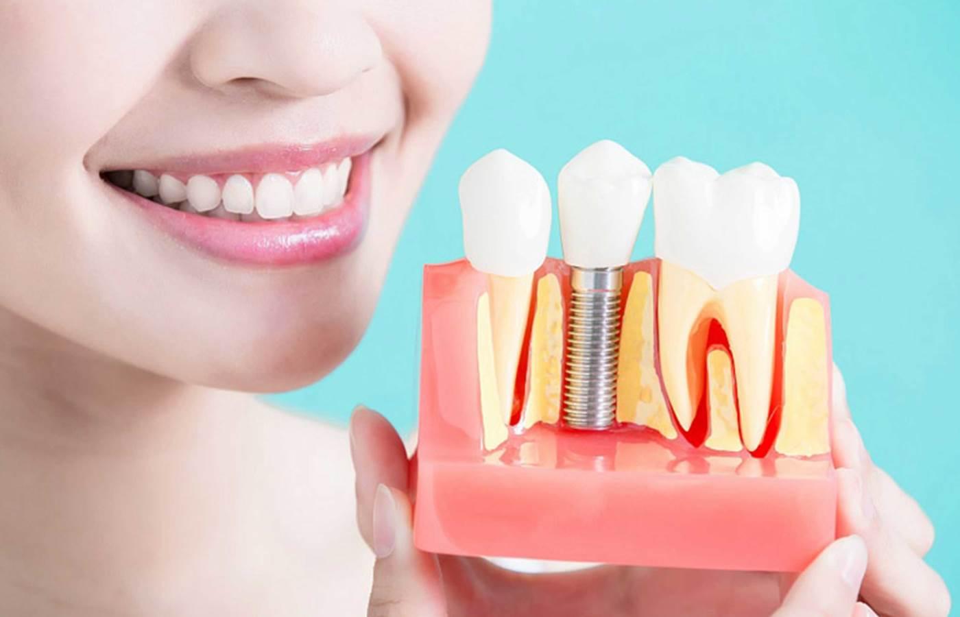 ایمپلنت دندان قروچه