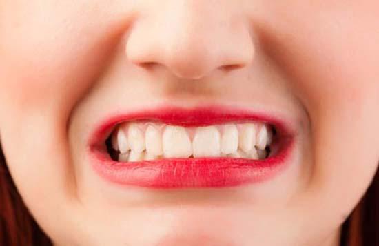شاید فکر کنید دندان قروچه عادت بیخطری است، اما این عادت میتواند در بلند مدت باعث تخریب مینای دندان، ایجاد فشار بسیار زیاد بر عظلات و مفصلهای فک و حتی درد فک یا سر درد مزمن شود.