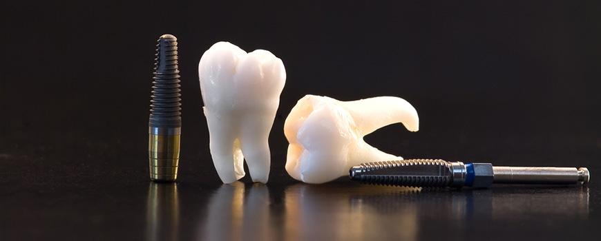 بگو یکی از شرکت های فعال و موفق آلمانی در زمینه دندانپزشکی می باشد که از سال ۱۸۹۰ فعالیت خود را شروع کرده است. بنیانگذار و ایده پرداز شرکت بگو ،دکتر ویلهلم هربست می باشد. ایمپلنت های بگو در شرایط تمیز و مدرن ساخته شده و بلافاصله در محیطی عاری از آلودگی بسته بندی می شوند.