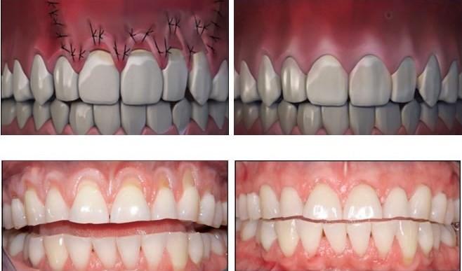 بعد از جراحی لثه، لثه بخیه زده شده و در محل آن پانسمان مخصوص قرار داده میشود. بیمار بعد از یک هفته برای معاینه مجدد و برداشتن بخیه باید مراجعه نماید. معاینه توسط دندانپزشک چند ماه یک بار به بیماران توصیه می شود. مراقبتهای بعد از جراحی لثه به بهبود سریع تر کمک بسیار زیادی میکند و باعث کاهش عوارض جراحی لثه میشود .