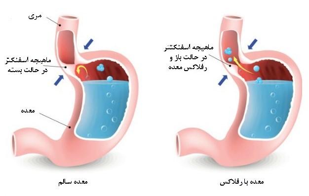 رفلاکس معده (GERD) از اختلالات گوارشی شایع است و زمانی رخ می دهد که محتویات معده به لوله مری باز می گردد.