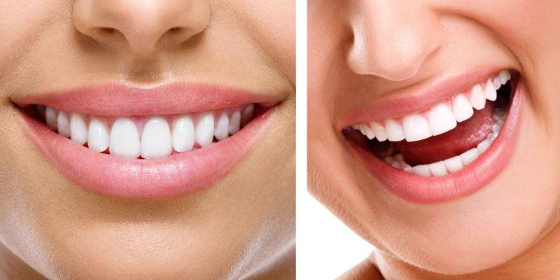 جراحی افزایش طول تاج دندان یا جراحی افزایش تاج دندان