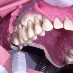 جراحی فلپ لثه چیست ؟