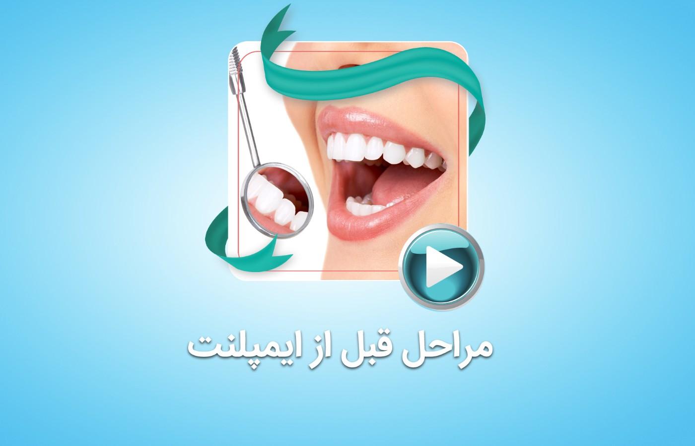 مراحل قبل از کاشت ایمپلنت دندان