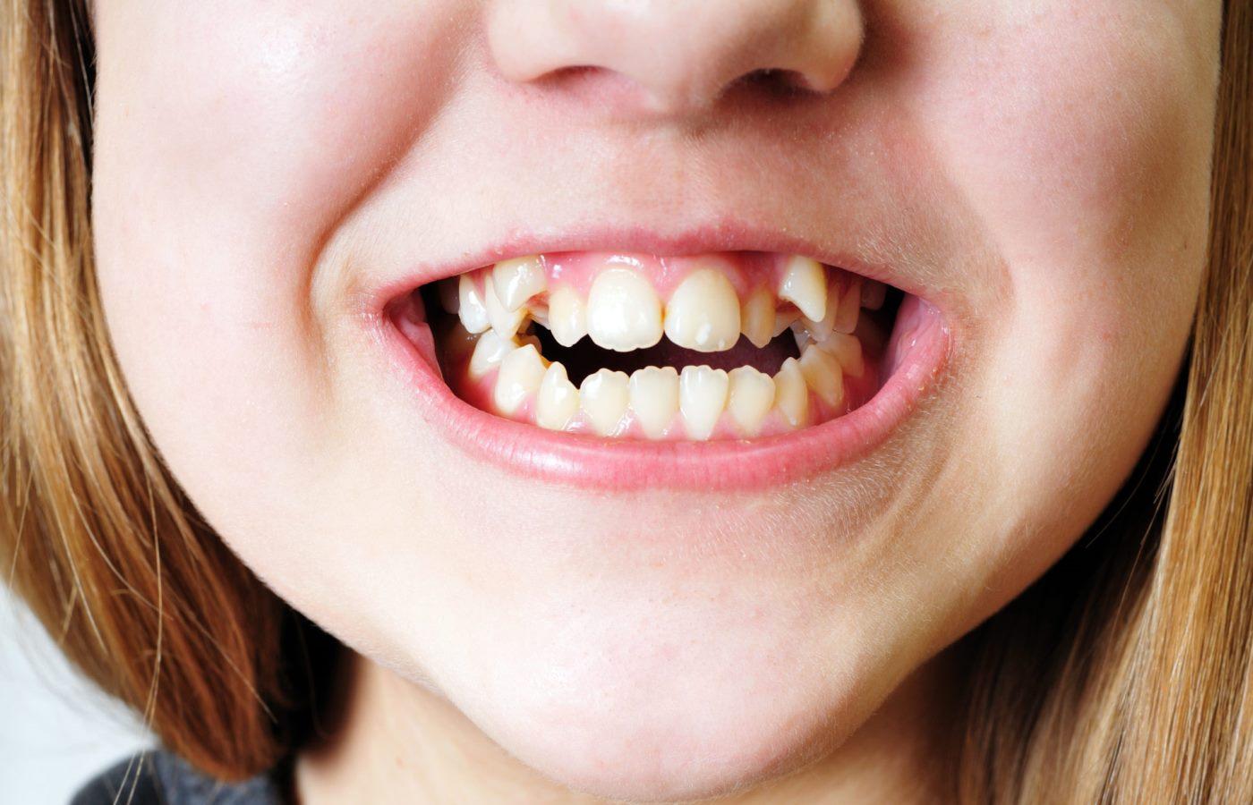 دندان اضافه در کودکان چه علتی دارد