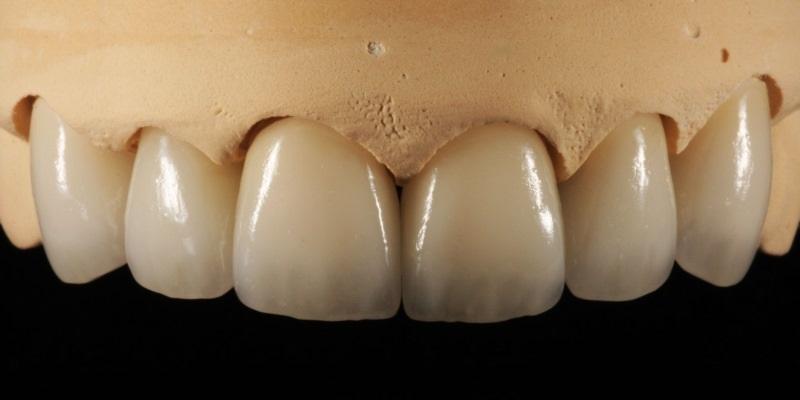 لابراتوار دندانپزشکی و مراحل ساخت دندان مصنوعی