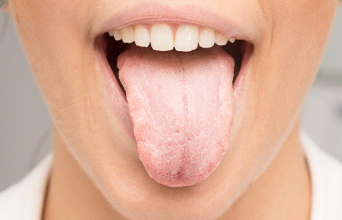 سفیدی روی زبان چیست ؟