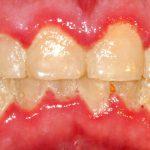 چگونه میتوان پلاک دندان را میتوان از بین برد