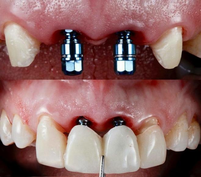 مراحل انجام ایمپلنت دندان جلو