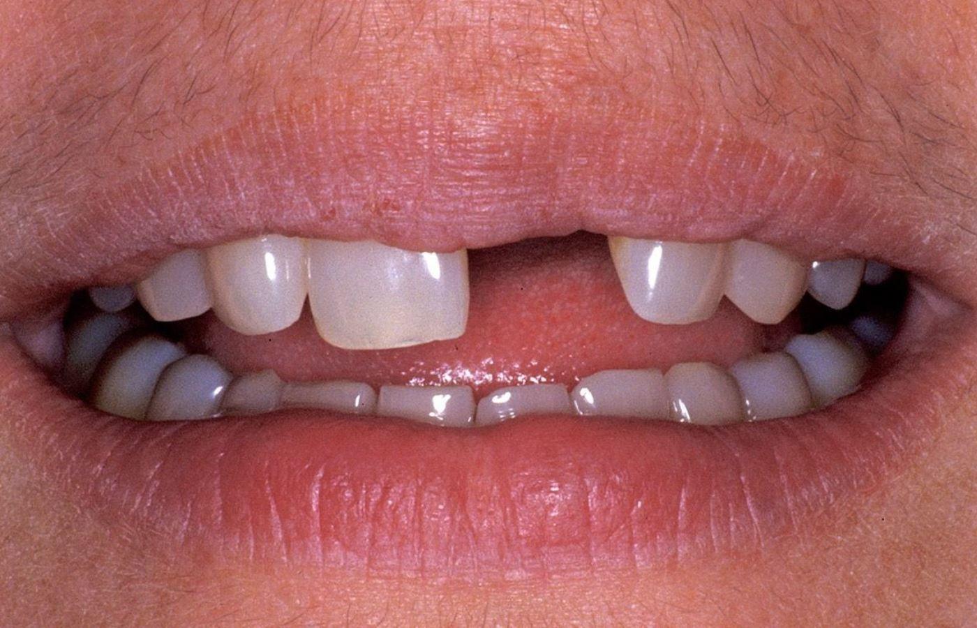 چرا ایمپلنت دندان جلو لازم است ؟