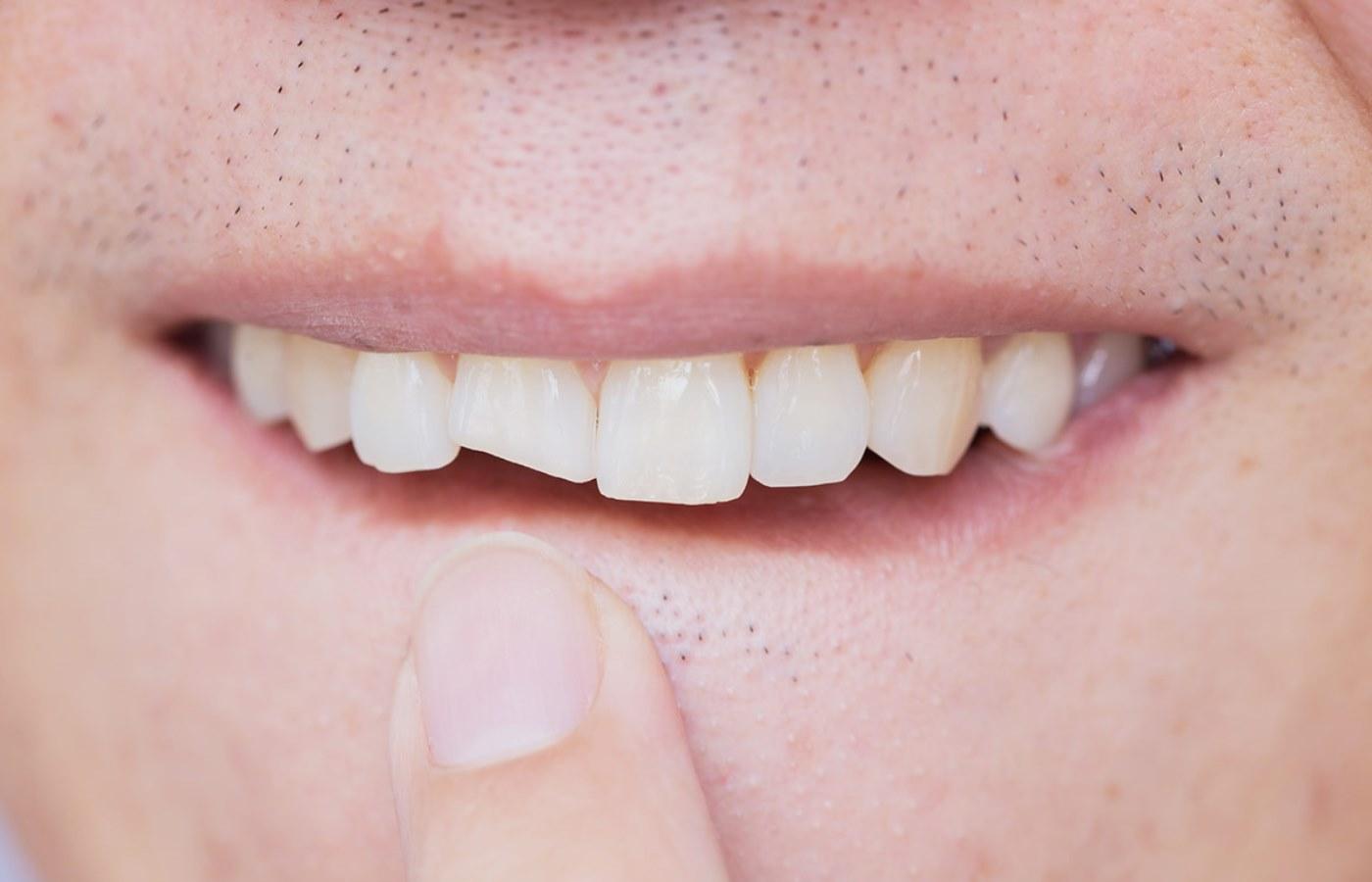 آیا برداشتن کامپوزیت دندان امکان دارد