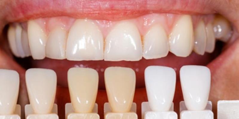 برداشتن کامپوزیت دندان و جایگزین کردن آن چگونه است