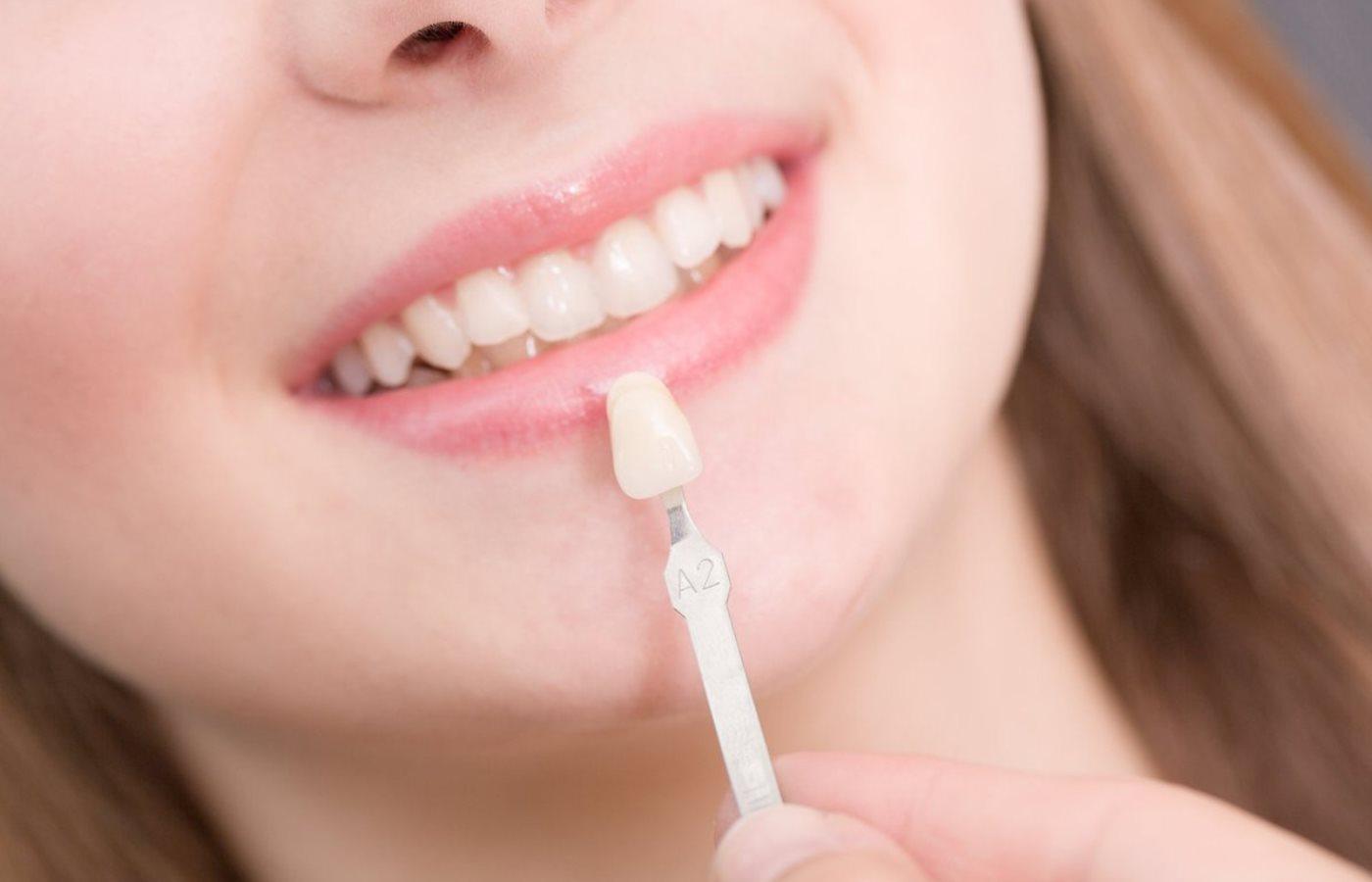 ماندگاری کامپوزیت دندان چه میزان بستگی به نحوه مراقبت دارد