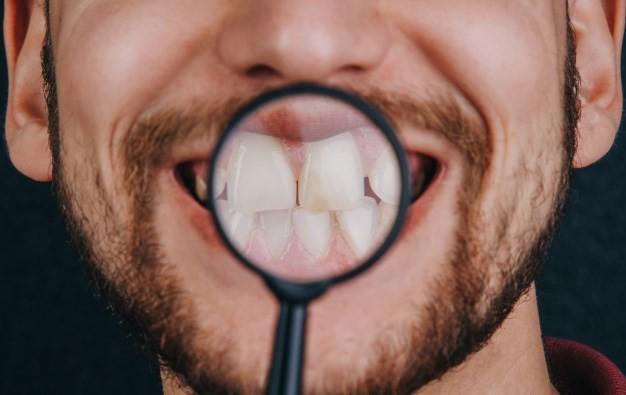 روش های پیشگیری از پوسیدگی دندان جلو کدام هستند