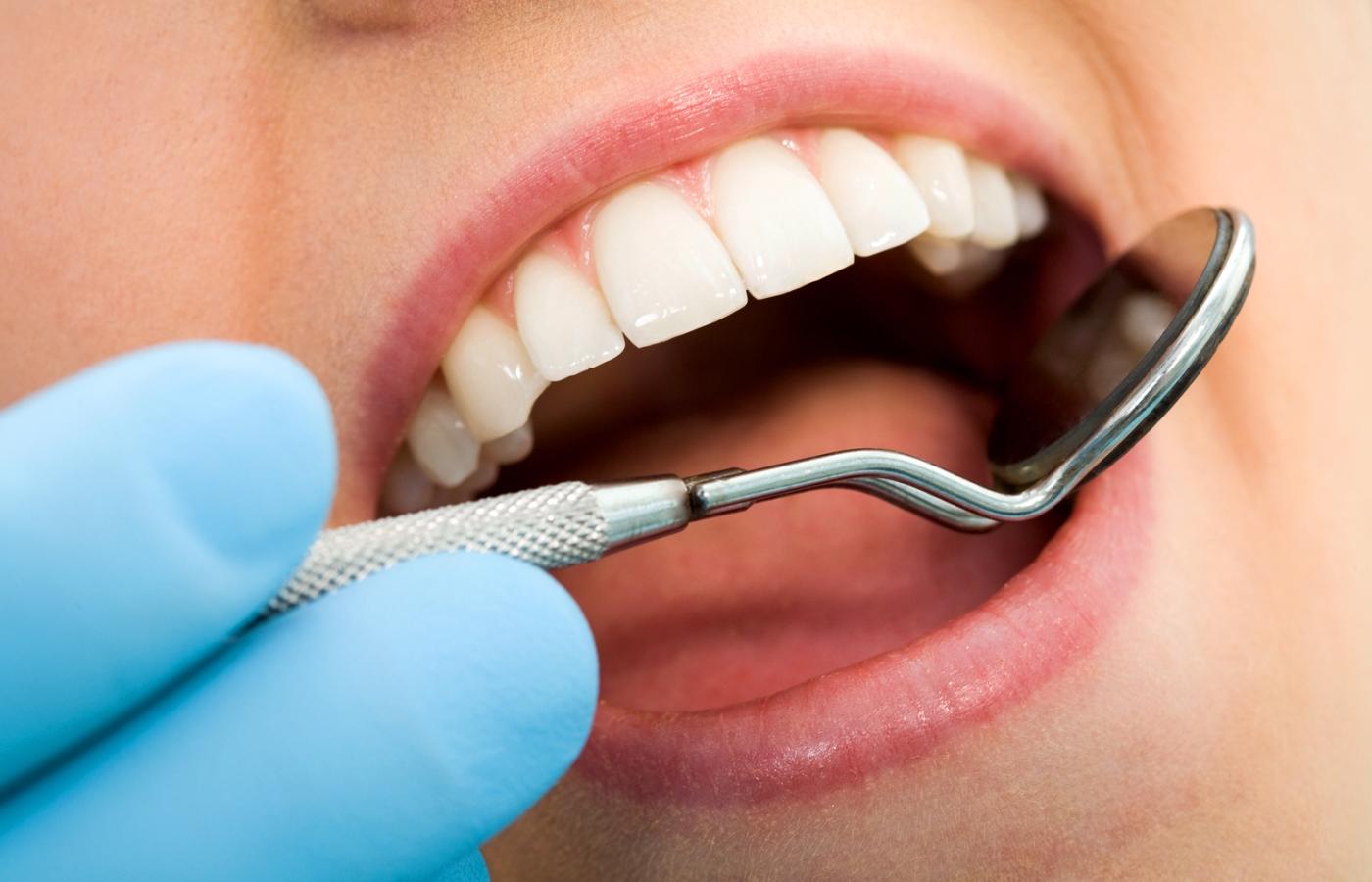 نکاتی در مورد مراقبت از کامپوزیت دندان