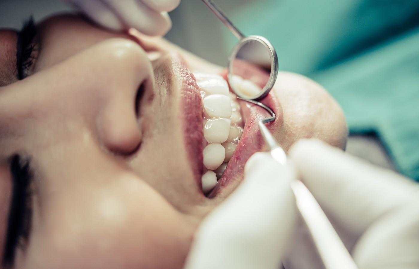 پوسیدگی دندان جلو به چه علتهایی ایجاد میشود