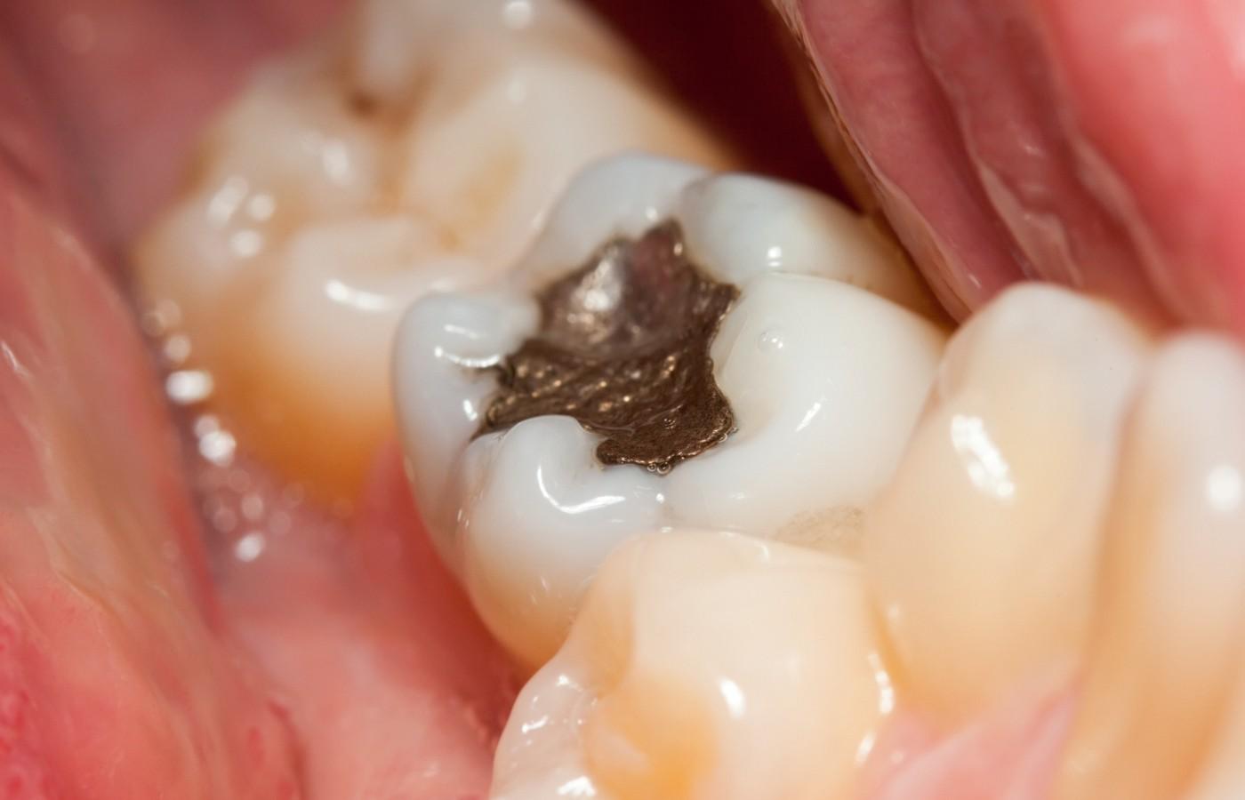 آیا آمالگام دندانی خطرناک است ؟