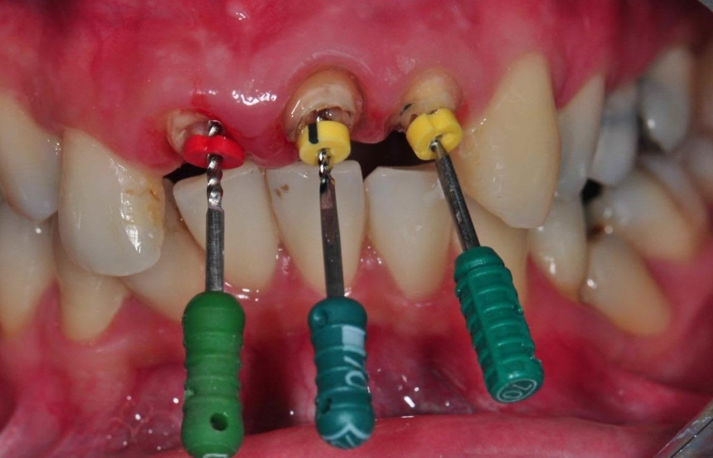 عصب کشی دندان جلو چگونه انجام میشود ؟